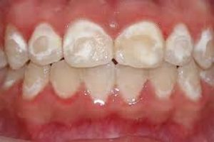 White-Spots-on-Teeth