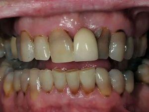 teeth_01